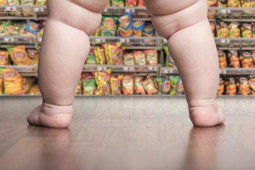 childhood obesity 3